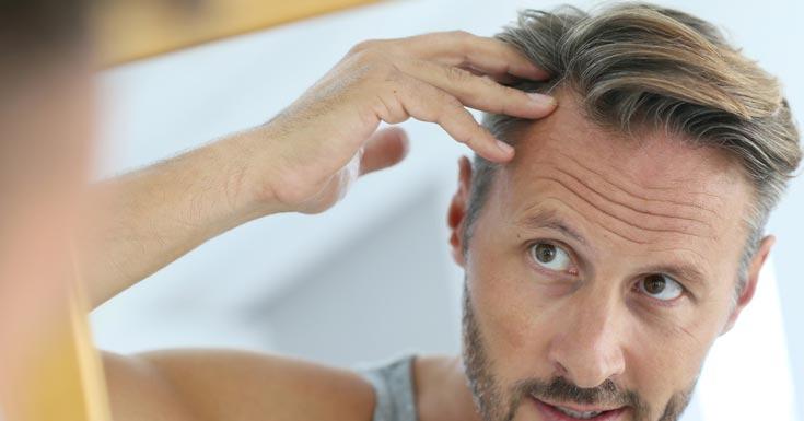 Aging Hair Loss